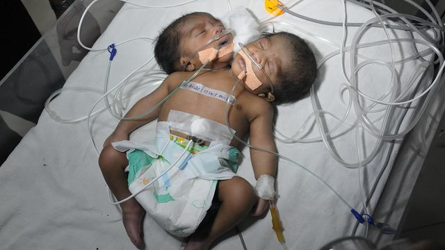 News video: Twins With One Body: Conjoined Boys In India